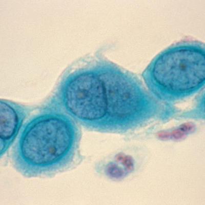 Антитіла IgG до хламидії (Chlamydia trachomatis)
