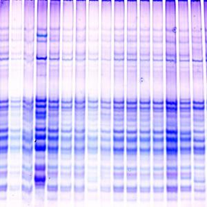 Белковые фракции крови (Протеинограмма)