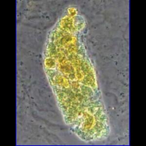 Билирубиновый цилиндр