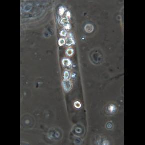 Лейкоцитарный цилиндр